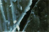 チタンインプラントの電顕像